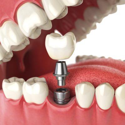 Implantologia i cirurgia